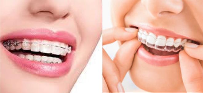 矯正歯科治療のイメージ